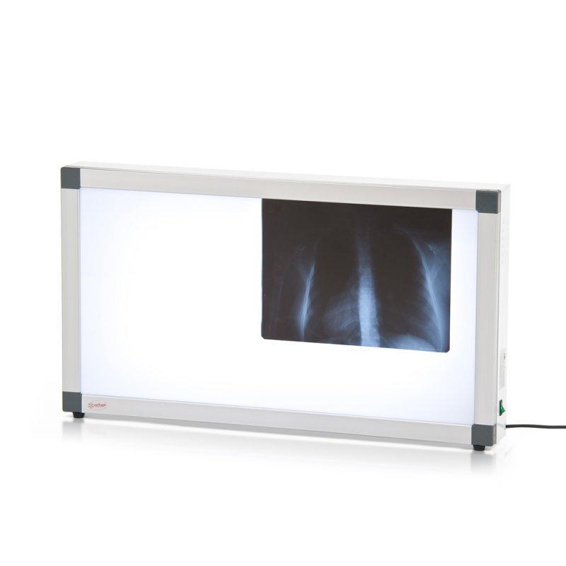 Негатоскоп общего назначения  2-кадровый флуоресцентный