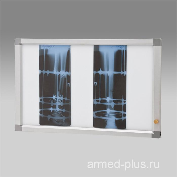 Негатоскоп общего назначения (Armed) 2-кадровый флуоресцентный